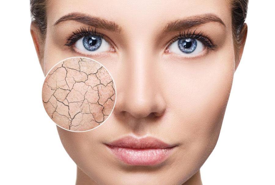 Uitgelegd: waarom Ceramiden belangrijk zijn voor de huid